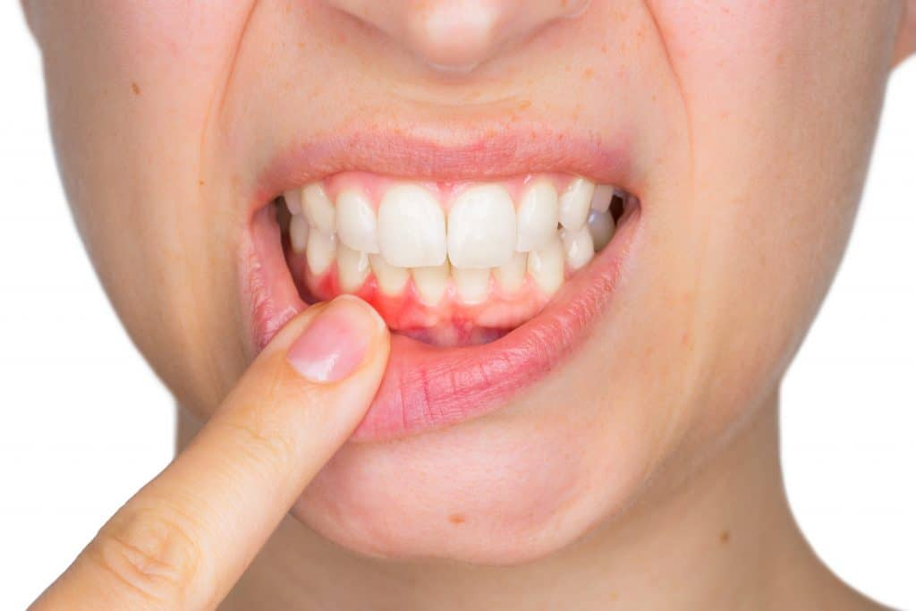 an image of receding gums