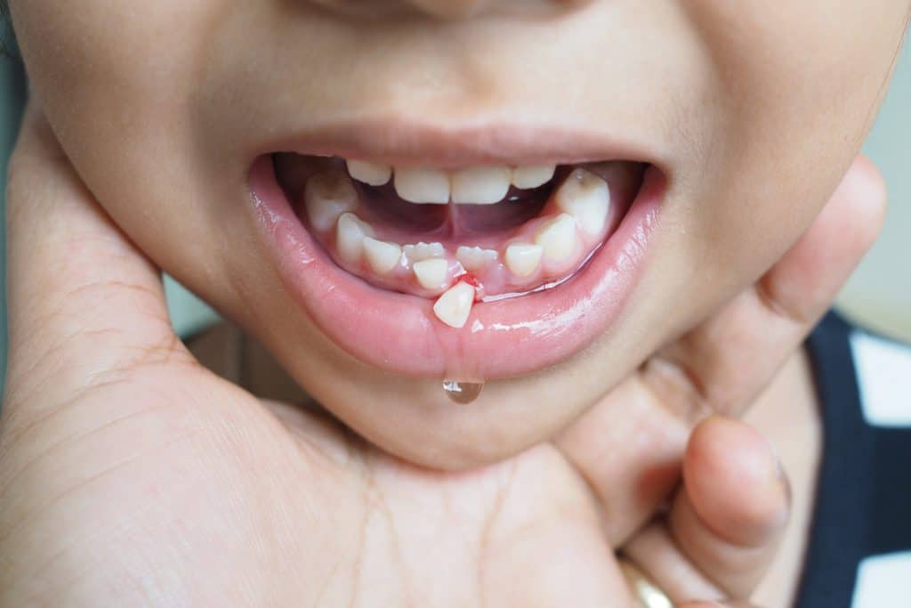 a child losing a tooth